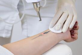 how-does-laser-tattoo-removal-work